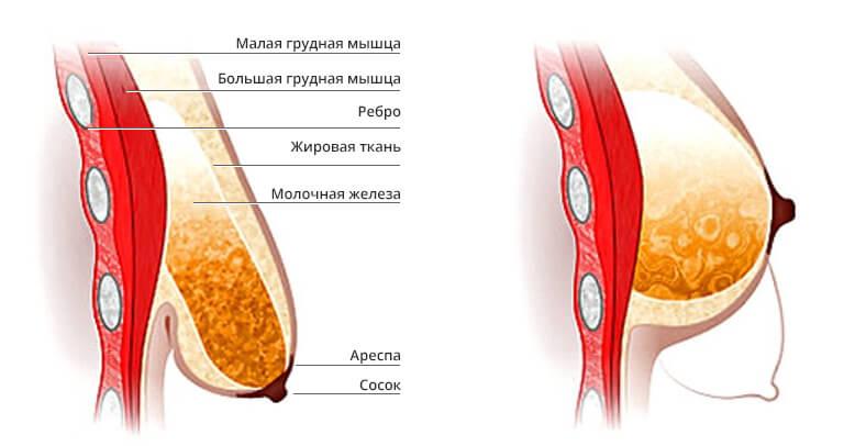 Пластическая хирургия | Лифтинг груди
